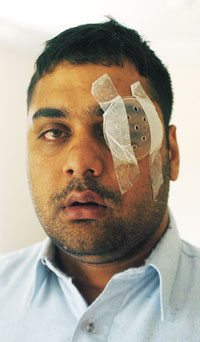Shahnawaz Khan has been left blinded in one eye following the attack - 504365